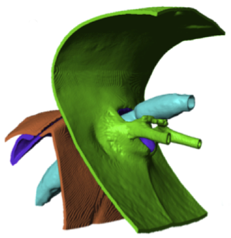 The full model is depicted in gold, while the parts of the neck region are shown in blue (esophagus), green (head), purple (neck) and brown (thorax). [Castro/OSU]