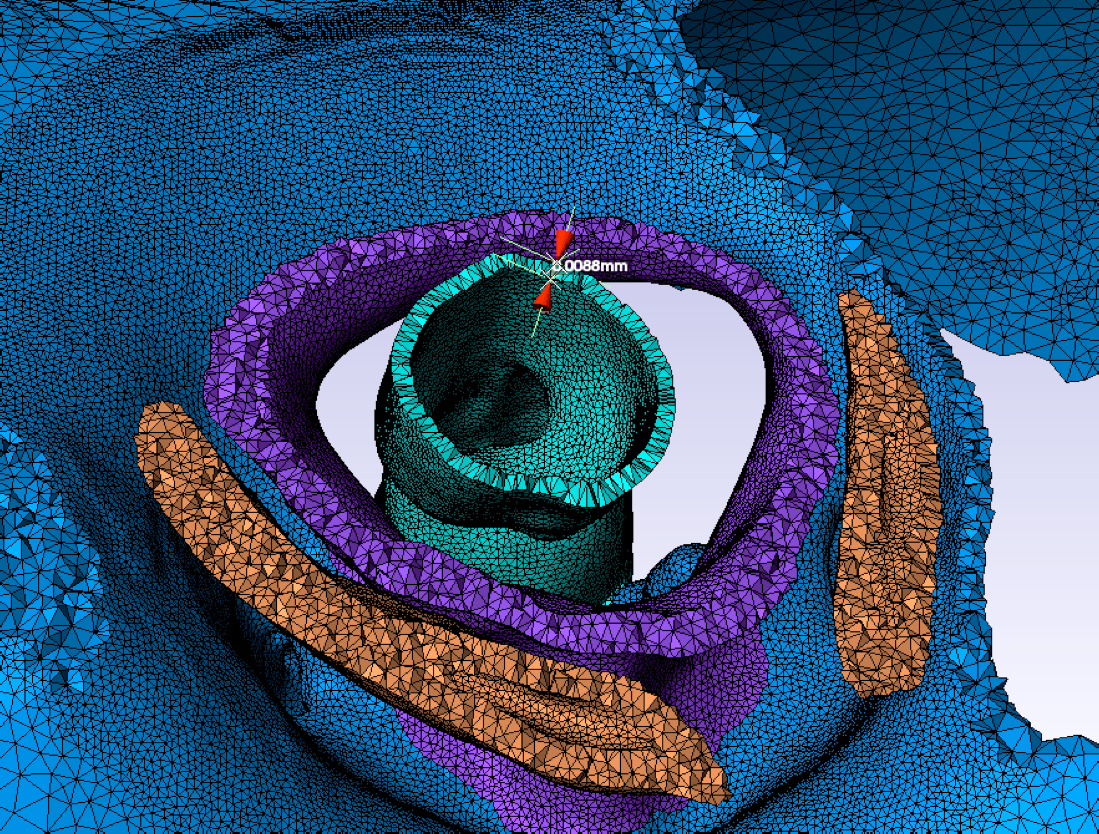 A cross-section of an ant's neck joint, part of a 3-D model created on OSC systems, helped Ohio State researchers to study the strength of the small insect. The cross-section shows the head (blue), neck membrane (purple), esophagus (teal), and thorax (orange). [Castro/OSU]